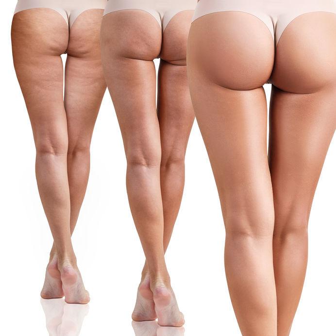 Celulitída, pomarančová koža na stehnách a zadku